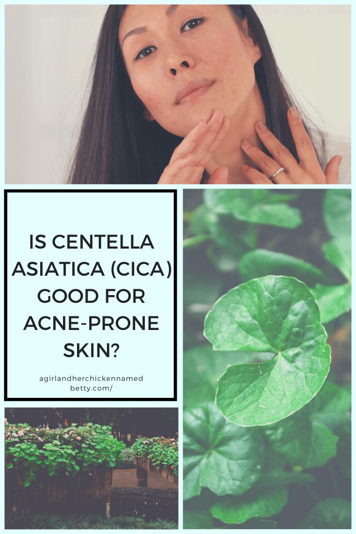 Is Centella Asiatica Good for Acne-Prone Skin?